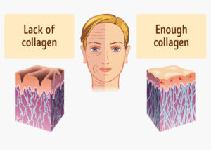 lack of collagen shows bad skin, enough collagen shows good skin