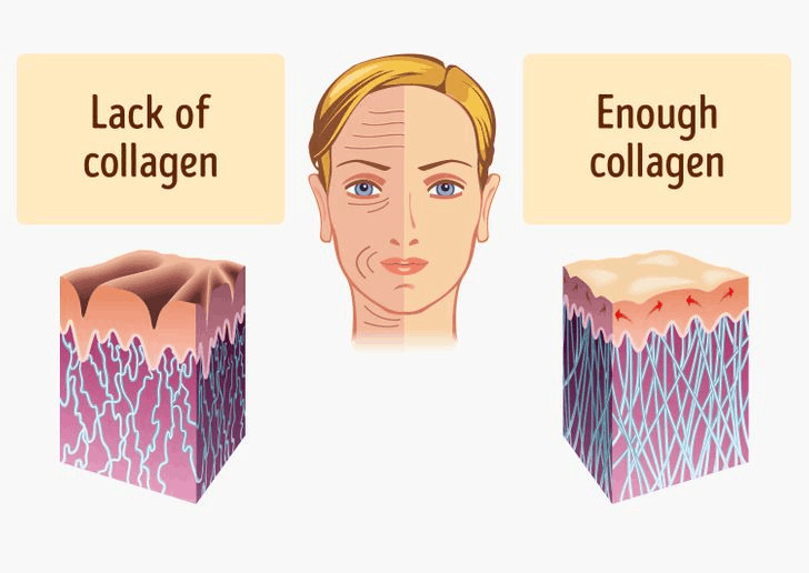 lack of collagen shows bad skin, enough collagen shows good skin